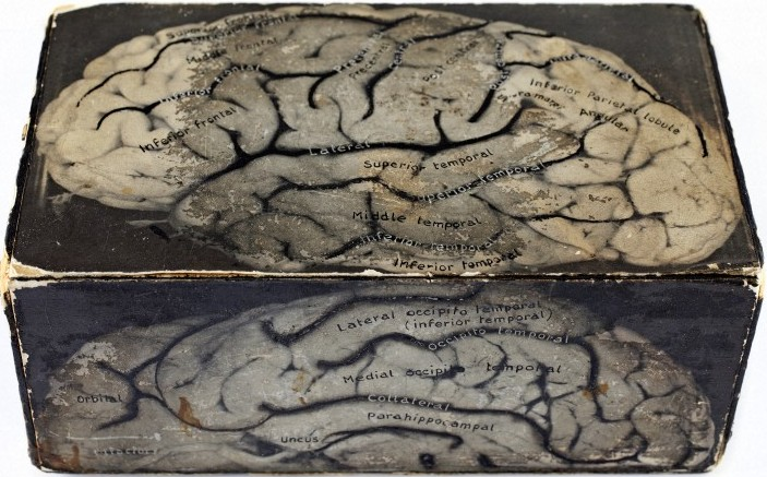Box Model of the brain, mid-20th-century