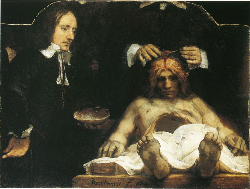 Rembrandt, Anatomy Lesson of Dr Joan Deyman, Amsterdam Museum